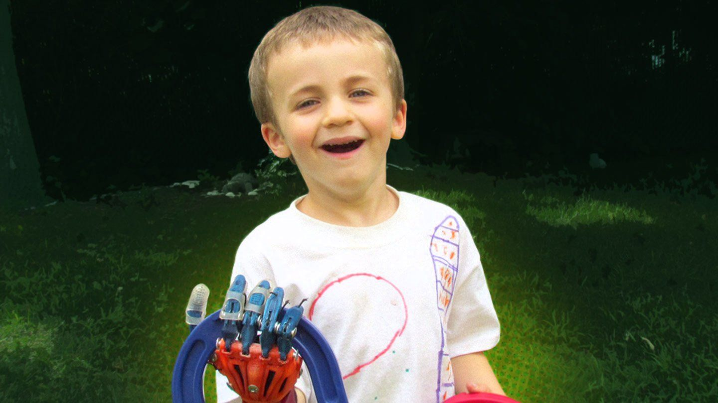 A young boy standing outside in the grass has a robotic right hand, and he's smiling, holding a blue and red plastic horseshoe.