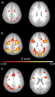 A Bright Bunch: These images, from a 2005 study in Cognitive Brain Research, show horizontal slices in the brains of adolescent boys, as measured while they were doing a spatial math problem. The pictures are composites from multiple boys -- those shown in a) having average math ability, and those in b) being gifted in math. The brighter the color in these fMRI pictures, the stronger the brain activity. The c) images show the active areas unique to the math-gifted brain.